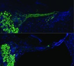 Hearing quality restored with bionic ear technology used for gene therapy: Re-growing auditory nerves | music acoustics | Scoop.it