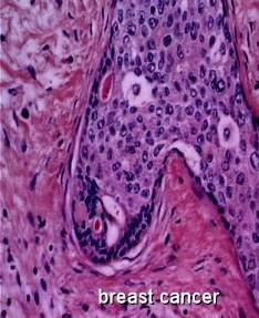 New statistical method offers automatic mitotic cell detection for cancer diagnosis   Science Codex   Breast Cancer News   Scoop.it