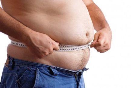 Síndrome de Prader Willi: Obesidad por alteración genética ... | Health in Lac | Scoop.it