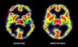 Shambhala Sun - This is Your Brain on Mindfulness (July 2011) | attention | Scoop.it