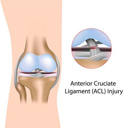 ACL Reconstruction | ACL reconstruction surgery in Bangalore | Manipal Hospital | Scoop.it