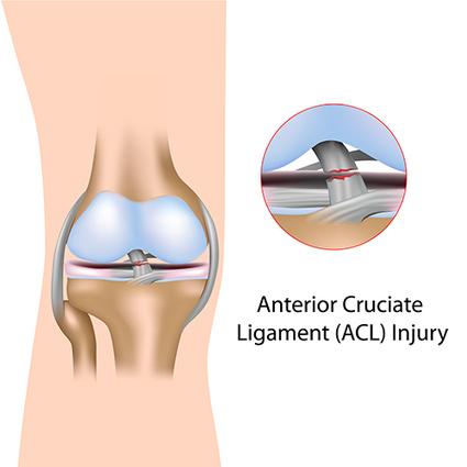 ACL reconstruction surgery Bangalore | Arthroscopic Surgery in Bangalore | Ligament tear treatment Bangalore | Bonecare Manipal Hospital | Scoop.it