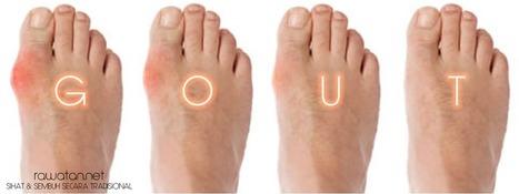 Ubat Gout Tradisional | Kesihatan | Scoop.it
