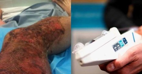 This stem cell gun helps burn victims regrow their skin in just a few days   Communication design   Scoop.it