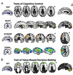 Deric Bownds' MindBlog: Distinct prefrontal areas regulating cognitive control and value decisions.   With My Right Brain   Scoop.it