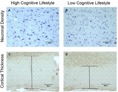 Thick and Dense = Cognitive Health | Longevity science | Scoop.it