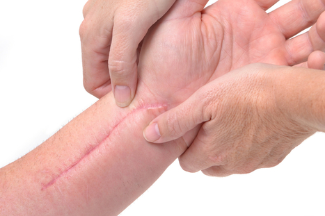 Treating Patients With Scar Tissue: Considerations for Massage Therapist School Students | | Massage Therapy | Scoop.it
