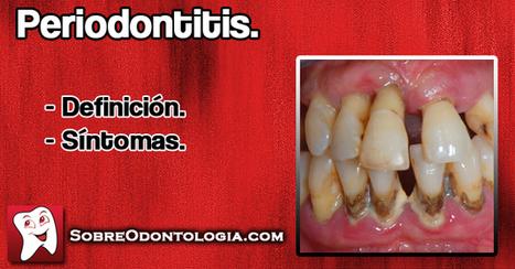 Periodontitis: Definición y Síntomas   Blog de Odontología   Odontología   Scoop.it