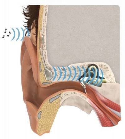 Implanted hearing aid uses bone conduction to bypass defective middle ear | Longevity science | Scoop.it
