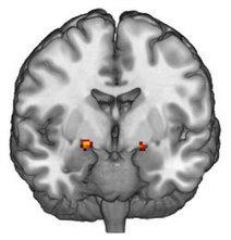 Brain Scans Explain Quickness to Blame | Filosofian opettaminen ja oppiminen | Scoop.it