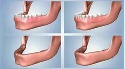 Dental Office Clinic,Dental Implants,Crowns,Treatment,Cosmetic Dentistry,Dentist,Teeth Bleaching & Tooth Whitening at IndianHealthGuru in India | Advance Dental Surgery in India | Scoop.it