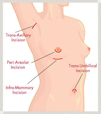 Incisions for Breast Augmentation | Breast Augmentation Thailand | Scoop.it