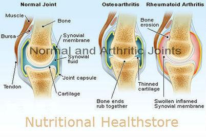 Information about Evening Primrose Oil Fertility | Health Supplements | Scoop.it