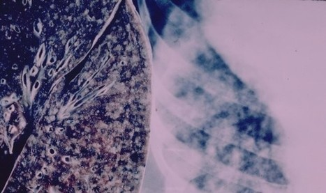 Experts Call For Urgent Action On India's Alarming TB Epidemic   Public Health News   Scoop.it