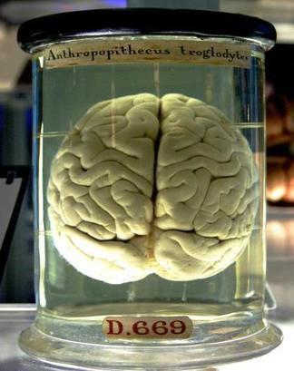 Científicos mapean los interruptores que determinaron la evolución del cerebro humano | Neurociencia y psicología | Scoop.it