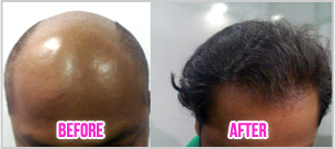 Hair Transplant Cost in Bangalore - TheNewYouClinic | Best Hair Transplant Surgeon in Bangalore | Scoop.it