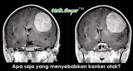 Penyebab Kanker Otak Yang Harus Diwaspadai | kecantikan kesehatan hobi | Scoop.it