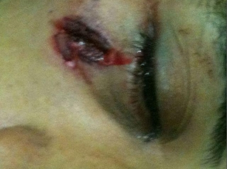 8/4/2011: Police almost hit his eye #Bahrain #Banijamra | Human Rights and the Will to be free | Scoop.it