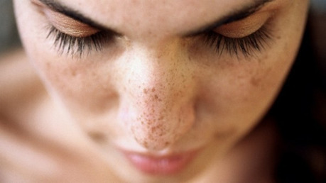 Remove Face Dark Spots Naturally With These Simple Tips! | Health And LifeStyle | Scoop.it