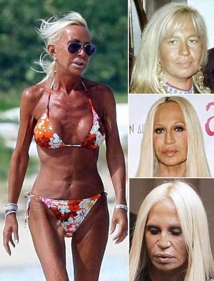 Donatella Versace Plastic Surgery Disaster — Plastic Surgery Facts | Celebrity Plastic Surgery News | Scoop.it