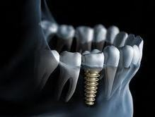 Where you can obtain the affordable dental discount plans | Affordable dental discount plans | Scoop.it