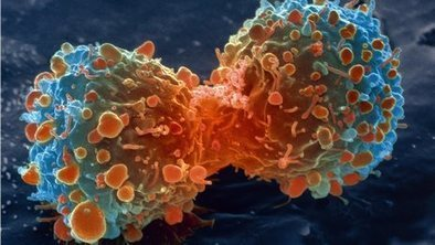 Cancer costing Europe 'billions' | Complex Insight  - Understanding our world | Scoop.it