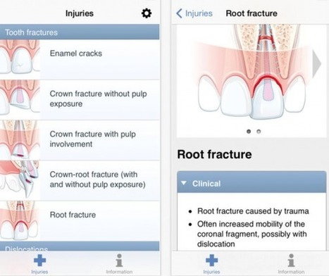 Study finds the best dental apps for management of traumatic dental injuries - iMedicalApps | Teaching and Learning software and topics | Scoop.it