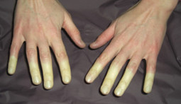 Tips in Keeping Raynaud's Symptoms at Bay - Personacare Health and Wellness Clinic | Personacare Health and Wellness Clinic | Scoop.it