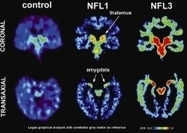 Brain scan may spot disease in athletes while they're still alive | Social Neuroscience Advances | Scoop.it