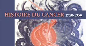 Les médecins de la Grande Guerre : utopie et progrès dans le traitement du cancer / Alain Denax | Sciences et Guerre | Scoop.it