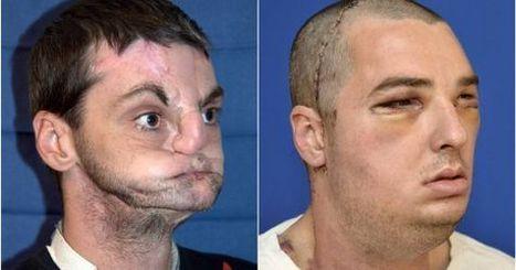 Cirujanos de EEUU realizan un revolucionario trasplante de cara | CienciadelaOEI | Scoop.it