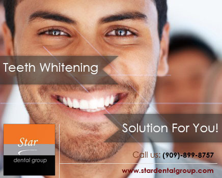 Brighten Your Smile With These Teeth Whitening Methods   Star Dental Group   Scoop.it