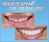 Alta White Teeth Whitening-Get Pearly White Smile Now Available in New ... - PR-BG.com (прессъобщения) (press release) | How to Make Whiter Teeth | Scoop.it