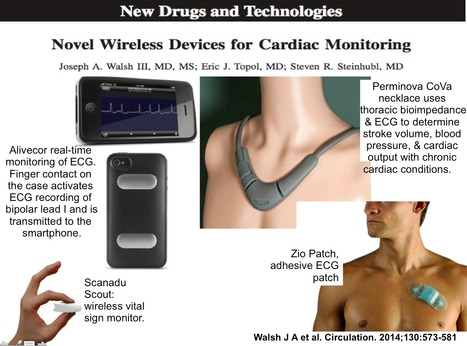 Novel Wireless Devices for Cardiac Monitoring | Heart and Vascular Health | Scoop.it