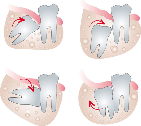 Tooth Extraction in Delhi NCR | Dental Clinic in New Delhi | Scoop.it