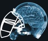 » Technology to Test for Concussions Still Lacking - Psych Central News   Brain Injury Awareness   Scoop.it