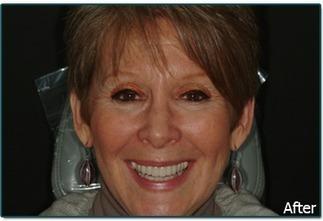 Cosmetic Dentistry with Veneers Ardsle | Mark Briskin D.D.S | Scoop.it