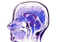 IV Seminario Internacional: Cerebro Digital | DOSSIER FINAL | Scoop.it