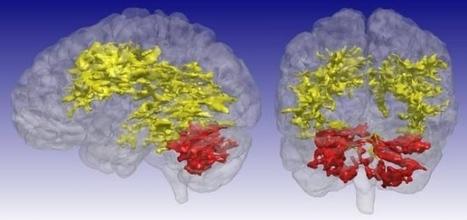 Los cerebros de los afectados por trastorno bipolar tienen rasgos característicos | Neurociencia y psicología | Scoop.it