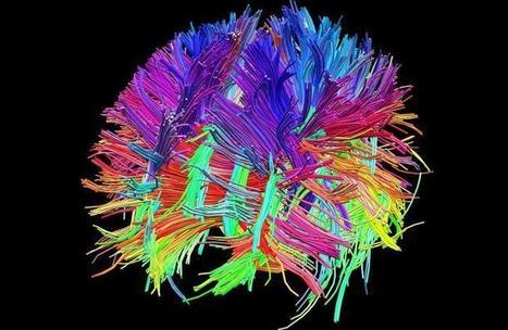 Toi, mon cerveau exporté | Salon de la Mort! | Scoop.it