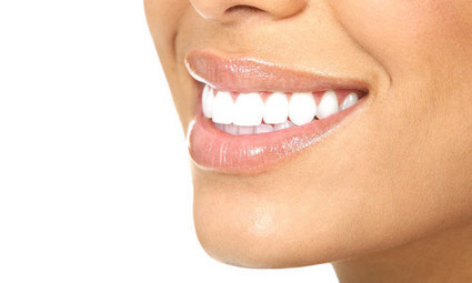 How Inexpensive Can Dental Implants Be - DivynenHealthy | silverstatedental | Scoop.it