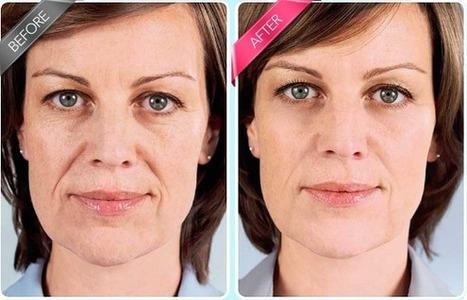 Daily Eye Restoration Review – Get Reduced Wrinkles And Look Beautiful! | caseylucas lucas | Scoop.it