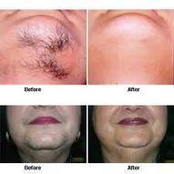 Benefits of Laser Hair Removal - Painless Treatment, Affordable and Permanent Results | Younger You Network | Anti Ageing Treatment | Scoop.it