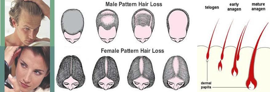 Как сделать чтобы волосы не росли на ногах