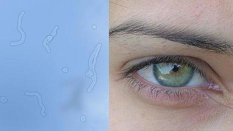 La física está detrás de las moscas flotantes que creemos ver delante del ojo | Salud Visual 2.0 | Scoop.it