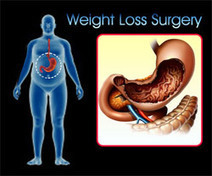 Weight Loss in Bangalore | Health | Scoop.it