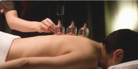 Why Hijama should be practiced regularly? | Hijama therapy UK | Scoop.it