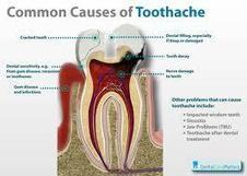 Got a toothache, What helps? - News - Bubblews | Are you ready to earn online! | Scoop.it