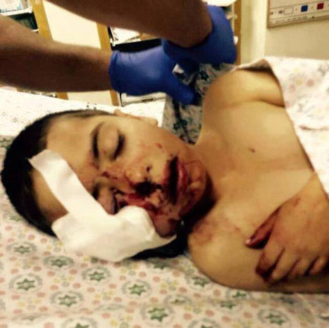 Israeli serviceman shoots 5yo Palestinian in the face (GRAPHIC IMAGES) | Saif al Islam | Scoop.it