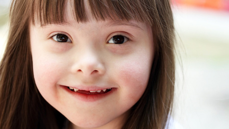 Scientists May Have Found a Genomic Off Switch for Down Syndrome | Social Brain, Social Mind | Scoop.it